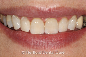 Tooth Whitening After