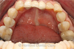 Replacing Metal Fillings After